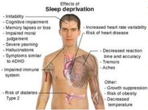 effects-of-sleep-deprivation