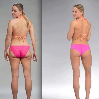 Brazil Butt Lift Spotlight Transformation | Nikki Kuban Minton